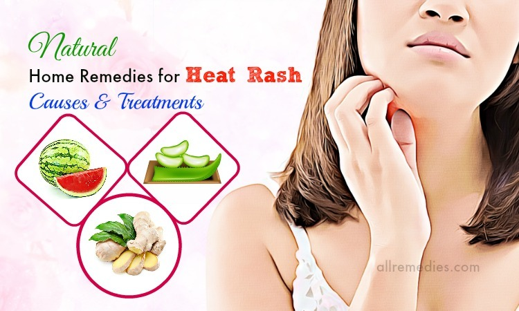 home remedies for heat rash