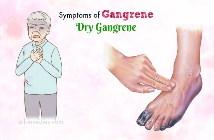 symptoms of gangrene disease